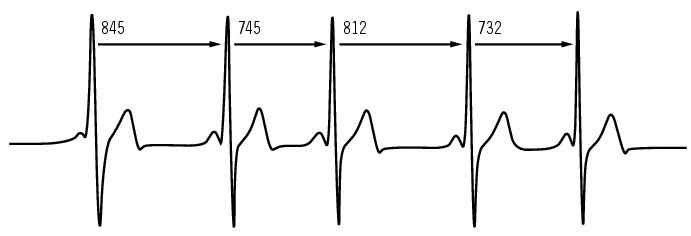 révolution cardiaque schéma